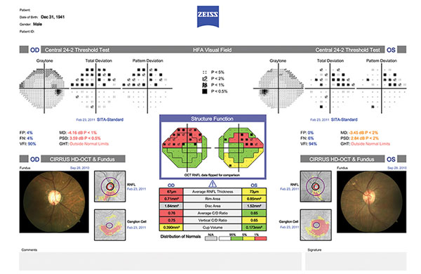 Test results and images on printout showing comparisons from field tests and eye examinations.