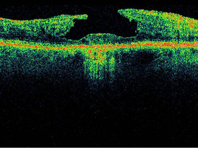 OCT 3D retinal scan showing macular hole